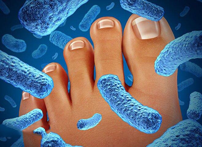 Причины появления неприятного запаха ног и обуви