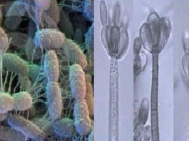 Грамположительные бактерии и грибы